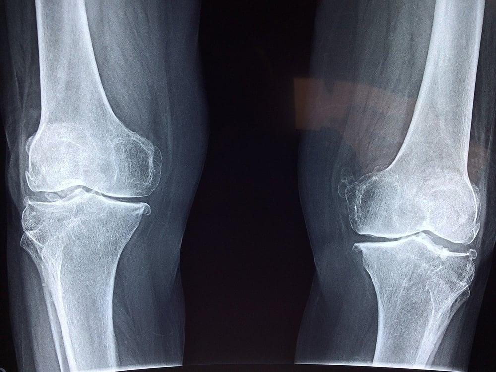 Dolori articolari: Quali sono le cause e come curarli